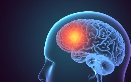 Tratamento para Metástases Cerebrais: Onde estamos?