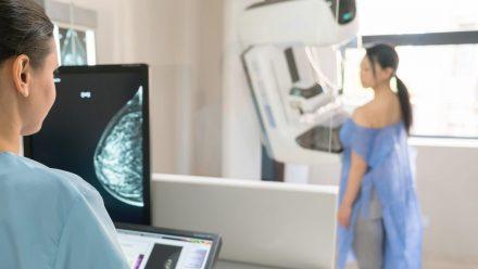 A primeira mamografia deve ser realizada aos 40, 45 ou 50 anos?