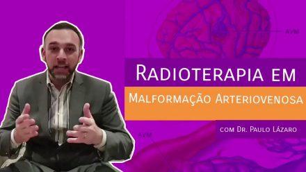 Radioterapia em Malformação Arteriovenosa